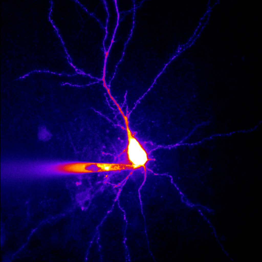 Forscher der Universität Bonn entdecken einen neuen Mechanismus, der zur Epilepsie führt + + + mehr:
