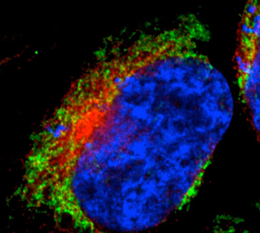 Alzheimer-Toxine legen Kraftwerke der Zelle lahm