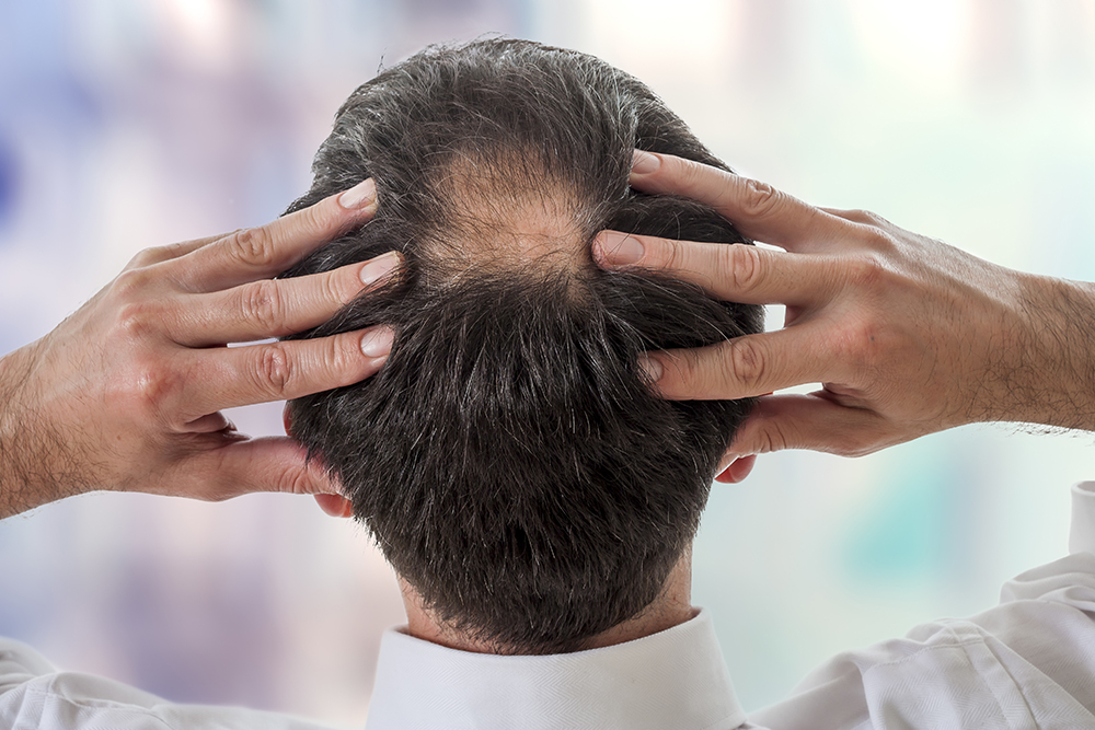 Studie zum männlichen Haarausfall